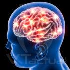 Monóxido de carbono podría causar cáncer cerebral