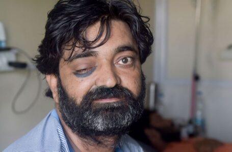 Argentina registra el primer caso confirmado de Hongo Negro